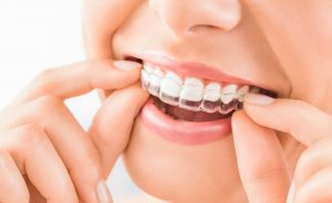 niewidoczny aparat ortodontyczny